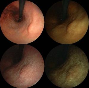 Magenspiegelung: Endoskopische Aufnahme eines Magenkrebs-Geschwürs im Frühstadium